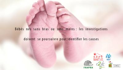Bébés nés sans bras ou sans mains : les investigations doivent se poursuivre pour identifier les causes